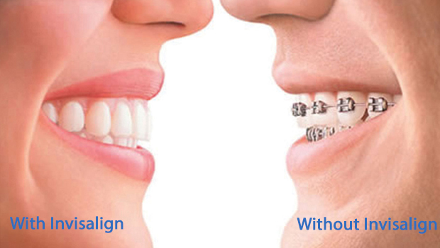 West Orange Invisalign